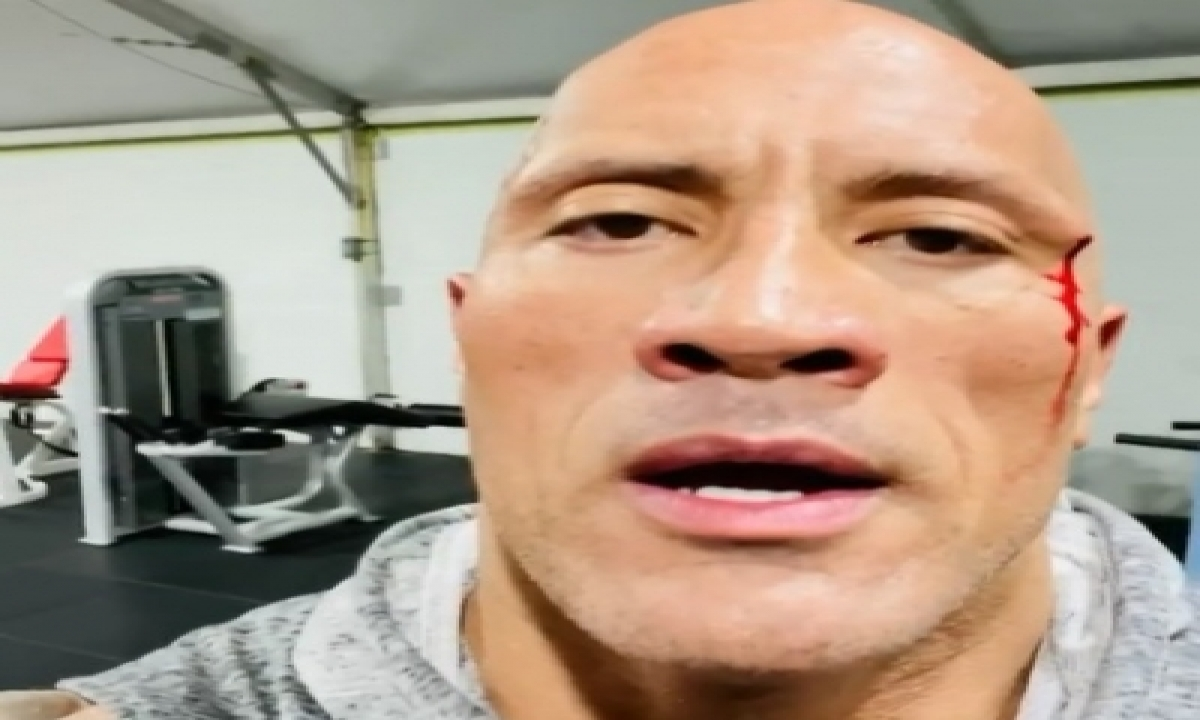 TeluguStop.com - Dwayne Johnson Injures Face While Working Out