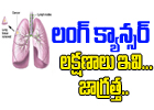 Important Symptoms And Signs Of Lung Cancer-Telugu Health-Telugu Tollywood Photo Image