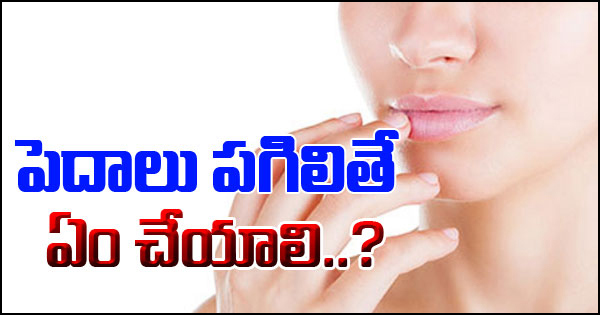 TeluguStop.com - Effective Home Remedies For Dry And Cracked Lips-Telugu Health-Telugu Tollywood Photo Image
