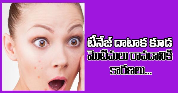 Even After Teenage, Pimples May Occur For These Reasons-Telugu Health - తెలుగు హెల్త్ టిప్స్ ,చిట్కాలు-Telugu Tollywood Photo Image
