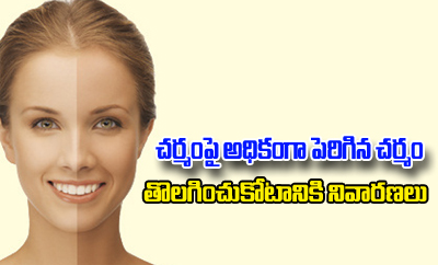Home Remedies For Sun Tanned Skin- --