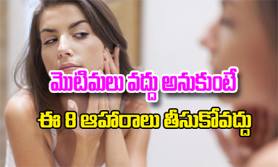 8 Foods To Avoid If You Have Pimples -8 Foods To Avoid If You Have Pimples - -Latest News-Telugu Tollywood Photo Image