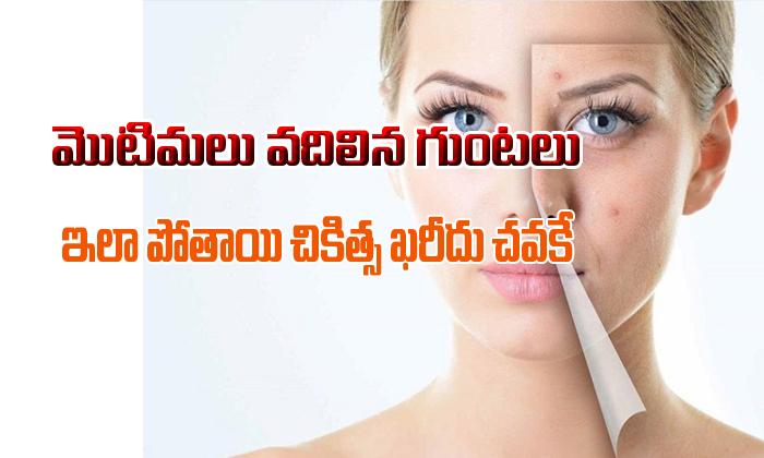 మొటిమలు వదిలిన గుంటలు ఇలా పోతాయి. చికిత్స ఖరీదు చవకే-Telugu Health-Telugu Tollywood Photo Image