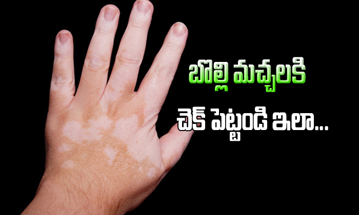 TeluguStop.com - Vitiligo Controled With Only Ayurveda Treatment-Telugu Health-Telugu Tollywood Photo Image