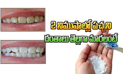 How To Get Rid Of Yellow Teeth-Telugu Health - తెలుగు హెల్త్ టిప్స్ ,చిట్కాలు-Telugu Tollywood Photo Image
