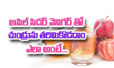 Apple Cider Vinegar Remedies For Dandruff-Telugu Health-Telugu Tollywood Photo Image