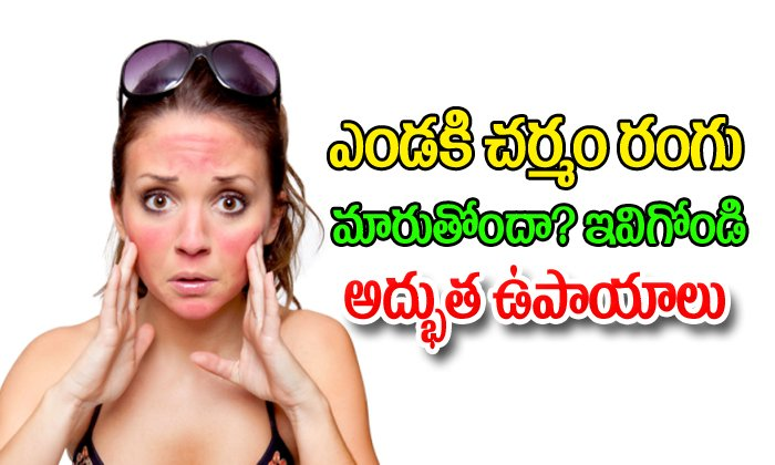 Sun Burn - Prevention And Cure - -Breaking/Featured News Slide-Telugu Tollywood Photo Image