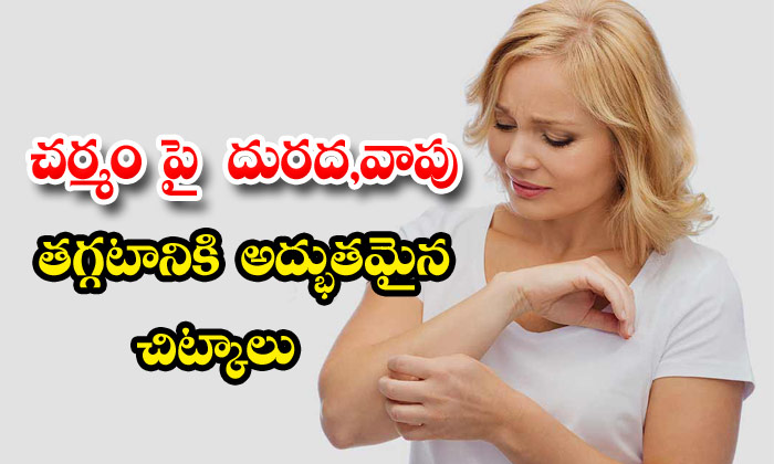 Effective Home Remedies For Burning Sensation