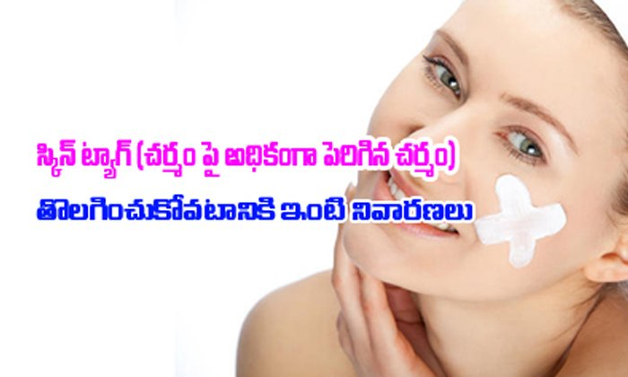 TeluguStop.com - Home Remedies For Skin Tags