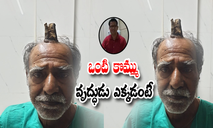74 Years Old Mp Man Grows Devil's Horn After Injury