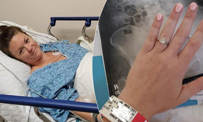 Woman Swallow Engagement Ring During Nightmare-Dream Jenna And Babi Endoscope Jenna Woman Swallows X Ray