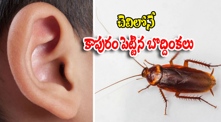 Cockroaches Are Living Inside The Man's Ear