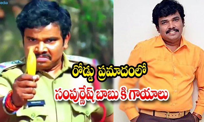 Actir Sampoornesh Babu Family Injured As Rtc Bus Hits His Car