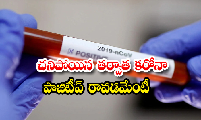 Corona Virus Corona Virus Death News Guntur News Death Person Got Corona Positive