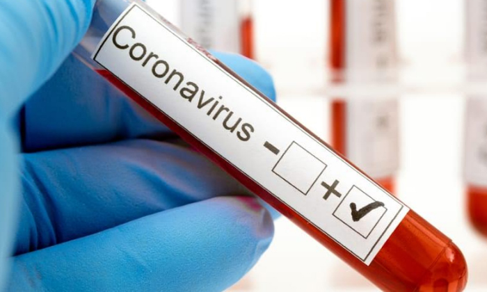 Telugu Coronavirus, Covid-19, Indian American Doctors, Indian Doctors, Jamaica Hospital, Nweyork, Us-