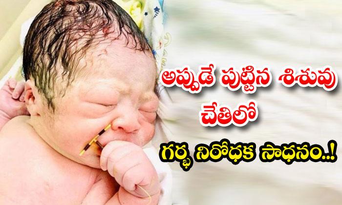 Newborn Babycontraceptive Coil