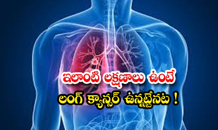 TeluguStop.com - Stages Of Lung Cancer And Treatment Details Know Here