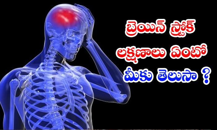 TeluguStop.com - These Are The Brain Stroke Symptoms In Telugu
