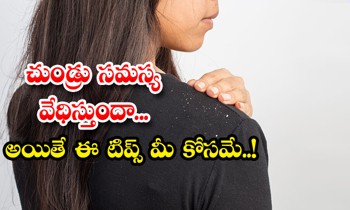 TeluguStop.com - How To Get Rid Of Dandruff Permanently
