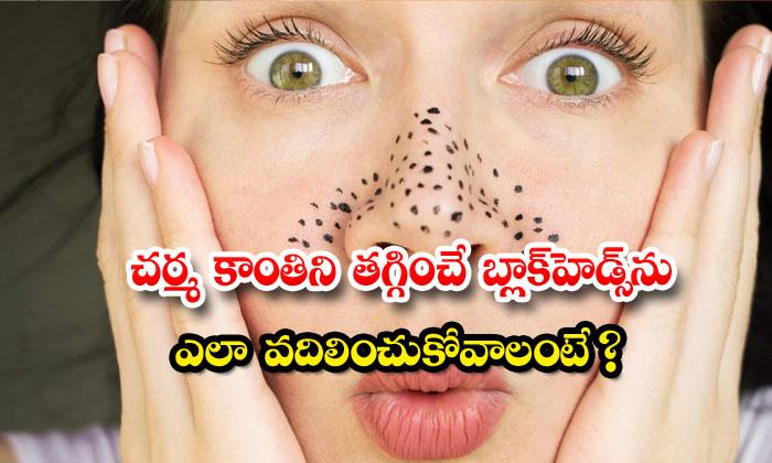 TeluguStop.com - Blackheads Latest News Beauty Tips